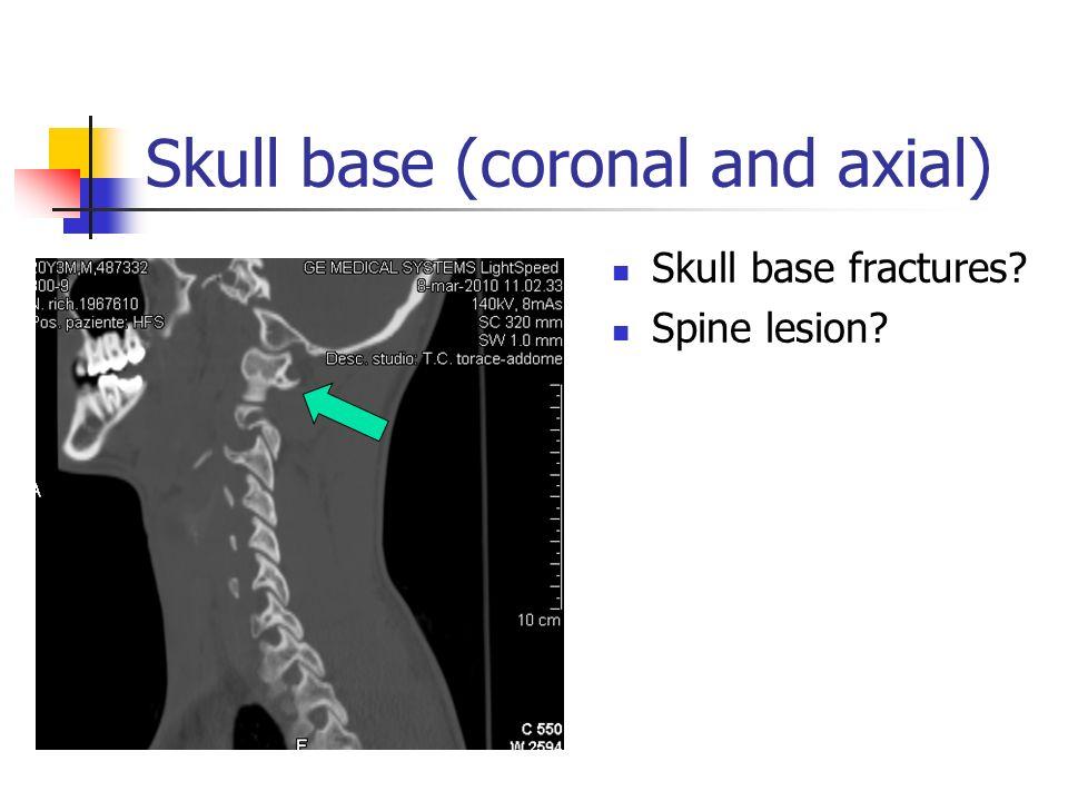 Skull base (coronal and axial)