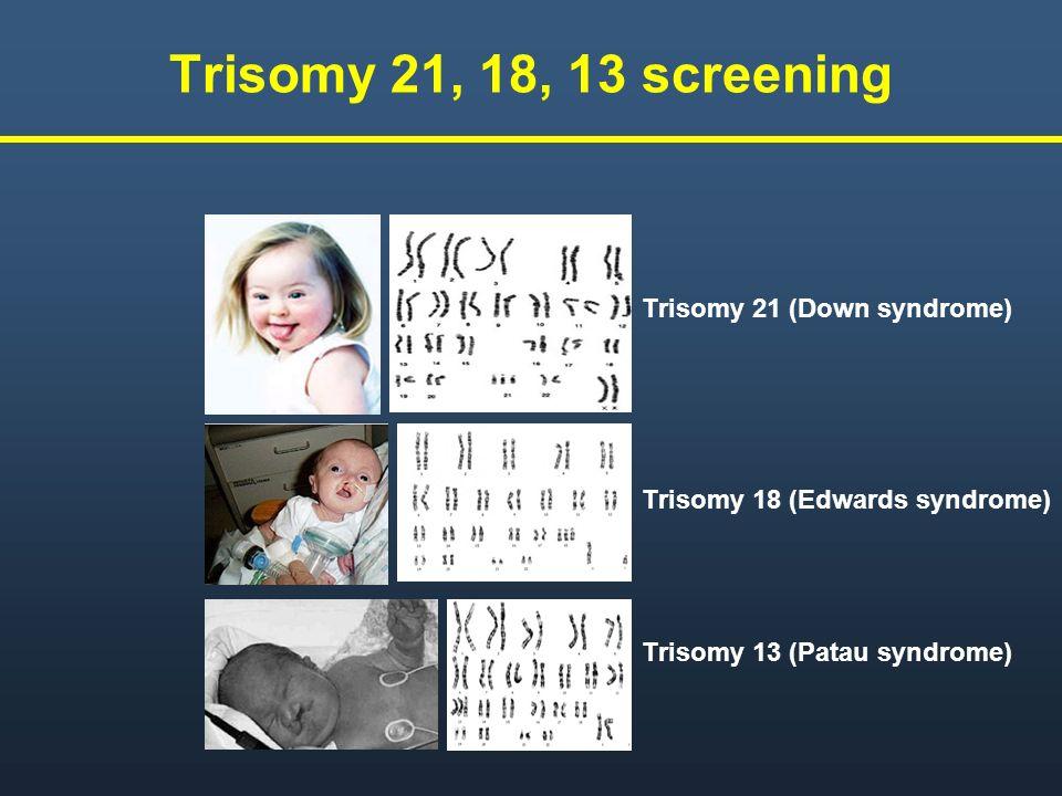 Trisomy 21, 18, 13 screeningTrisomy 21 (Down syndrome) Trisomy 18 (Edwards syndrome) Trisomy 13 (Patau syndrome)