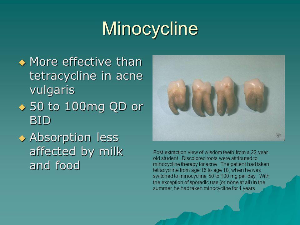 Tetracycline For Acne Duration