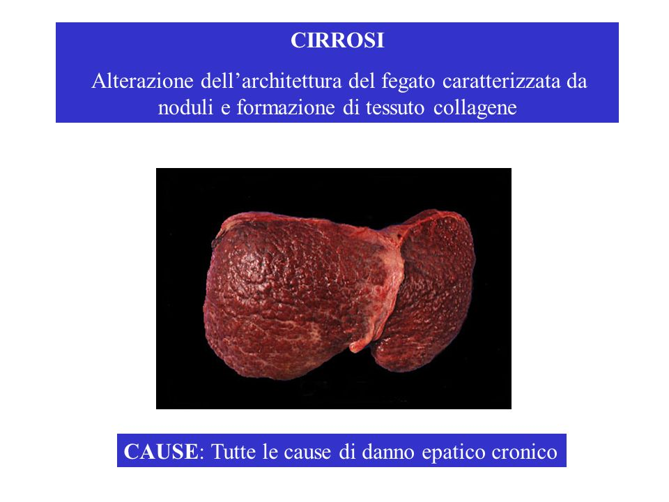 CIRROSI Alterazione dell'architettura del fegato caratterizzata da noduli e formazione di tessuto collagene.