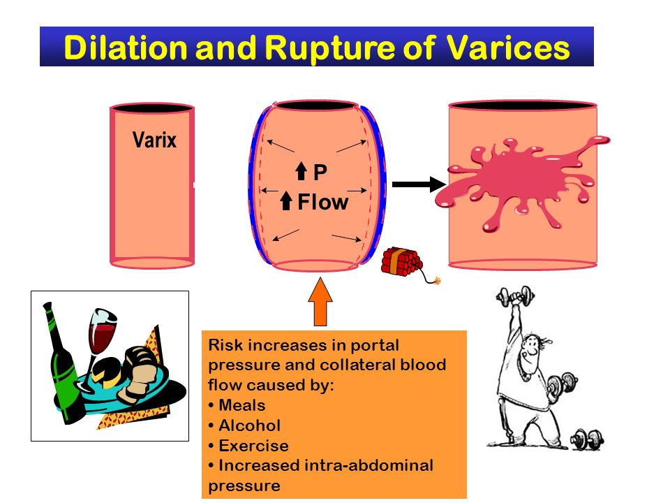 Dilation and Rupture of Varices