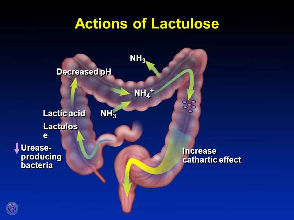 Actions of Lactulose NH3 Decreased pH NH4+ Lactic acid NH3 Lactulose