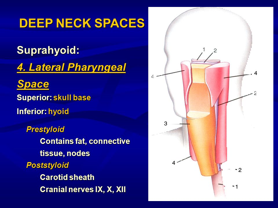 DEEP NECK SPACES Suprahyoid: 4. Lateral Pharyngeal Space