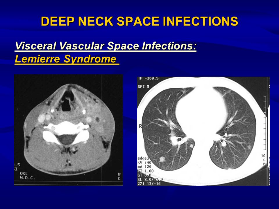 DEEP NECK SPACE INFECTIONS