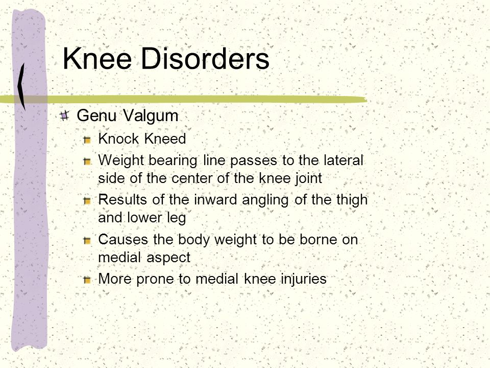 Knee Disorders Genu Valgum Knock Kneed
