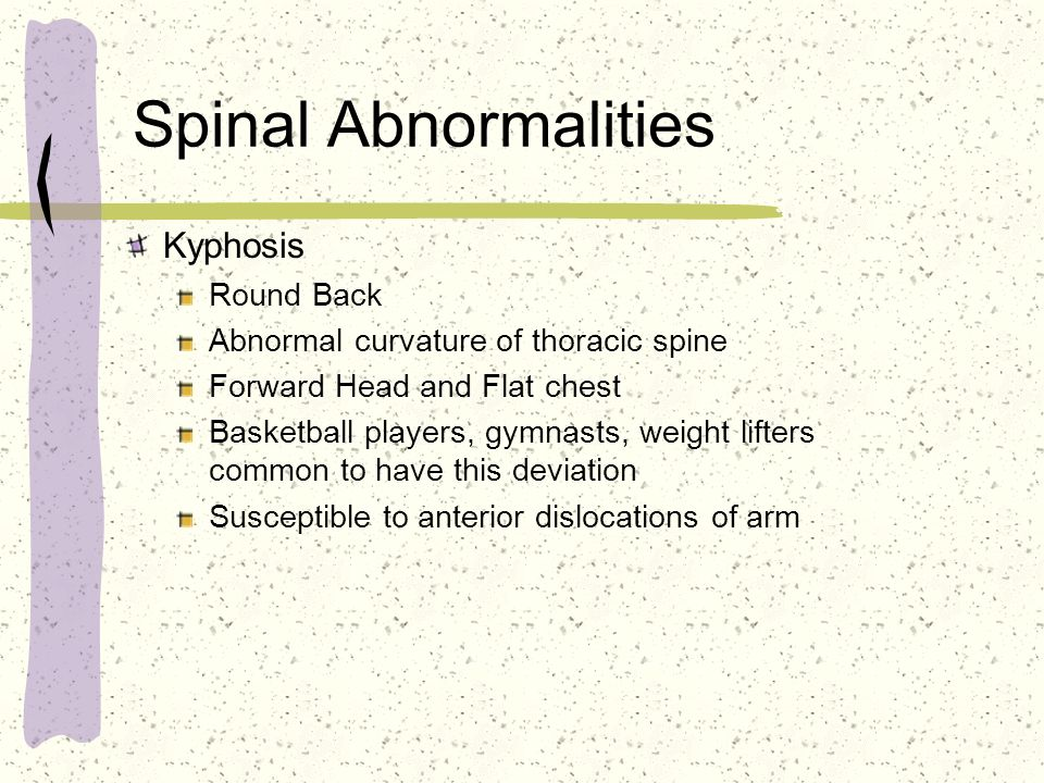 Spinal Abnormalities Kyphosis Round Back