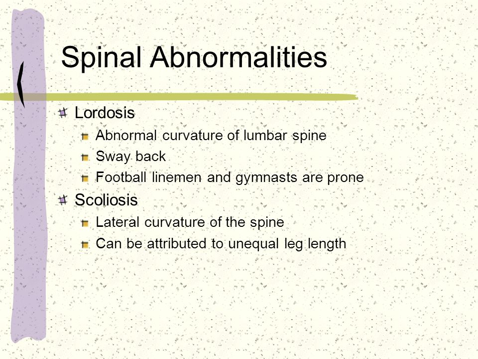 Spinal Abnormalities Lordosis Scoliosis