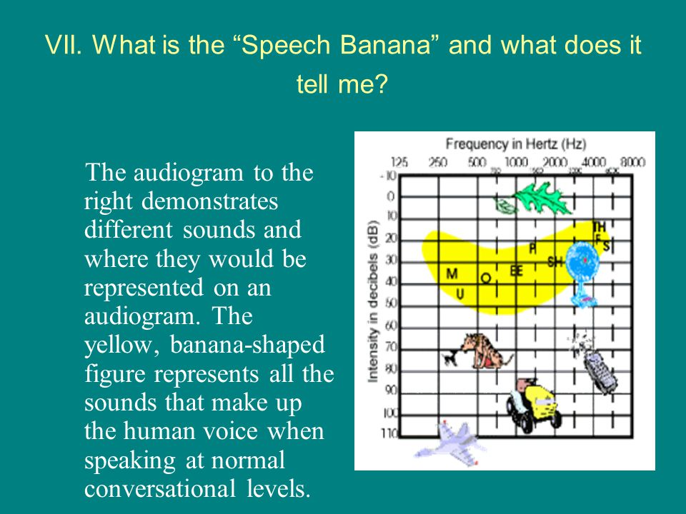 VII. What is the Speech Banana and what does it tell me