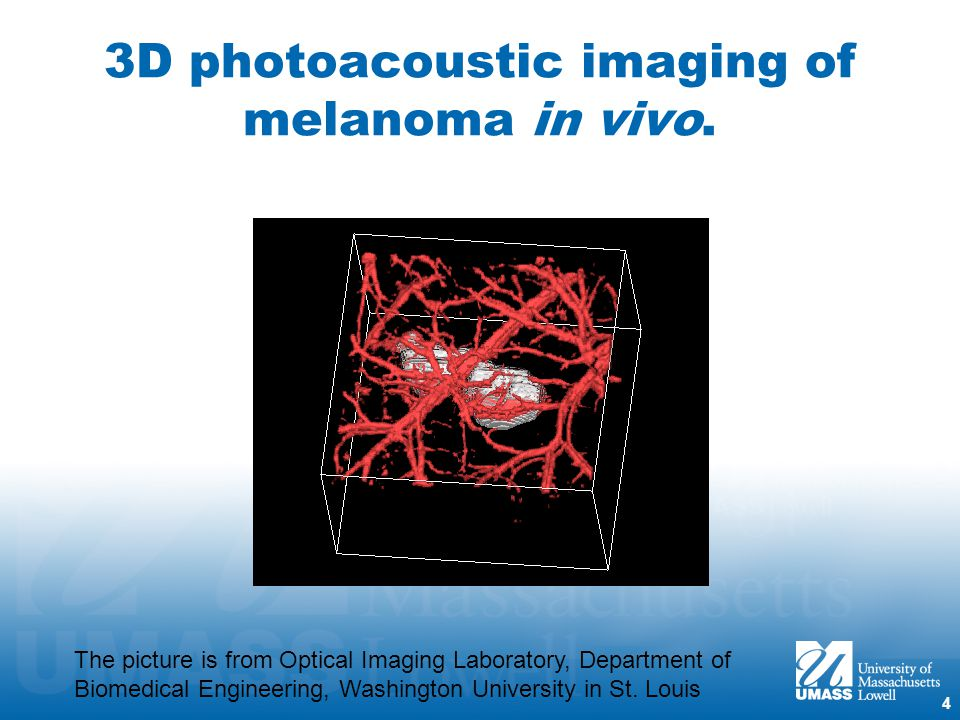 Photoacoustic Imaging To Detect Tumor Ppt Video Online