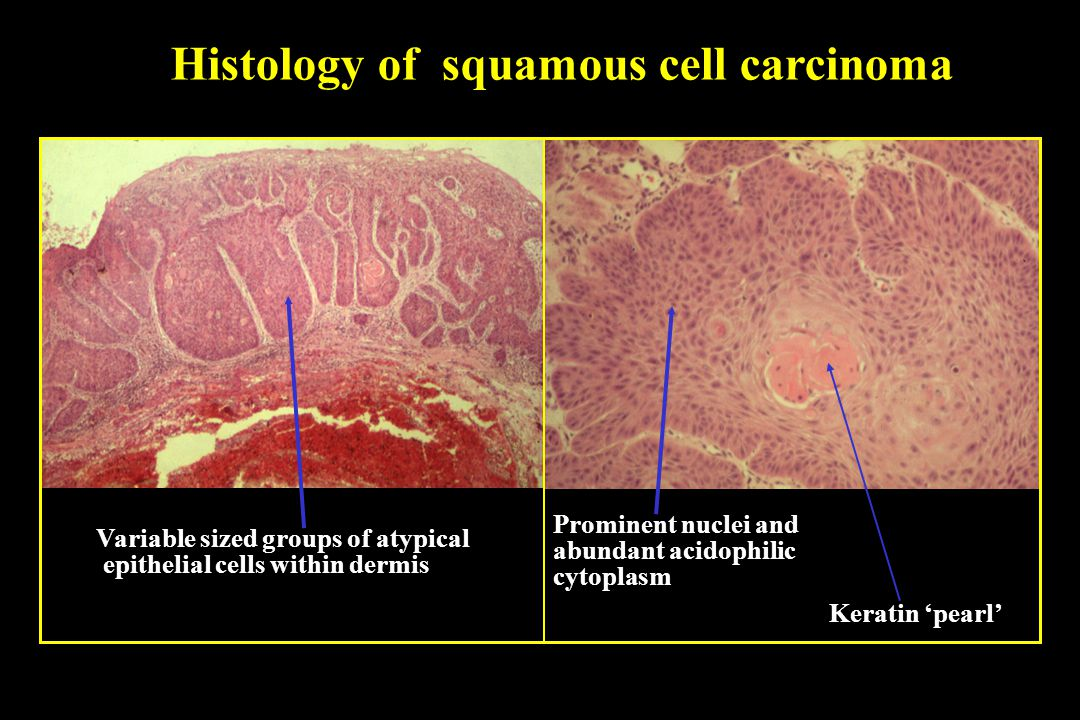 Squamous cell carcinoma vs basal cell carcinoma histology