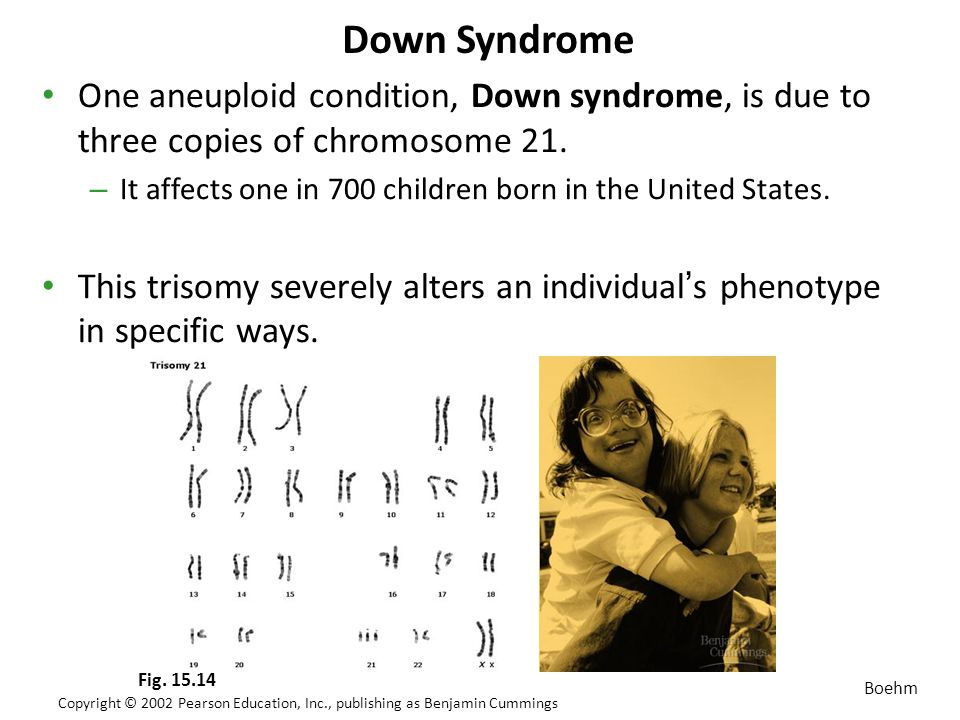 an introduction to the issue of down syndrome in the united states Fetal alcohol syndrome united states, 1979 1992 leversha, a m , and marks, r e the prevalence of fetal alcohol syndrome in new zealand new zealand medical journal 108: 502 505 issues in fetal alcohol syndrome prevention.