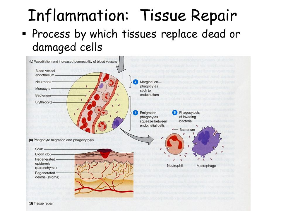 tissue repair process Tissue repair 1 repair : regeneration of injured tissue by parenchymal cells of the same type or replacement by connective tissue.