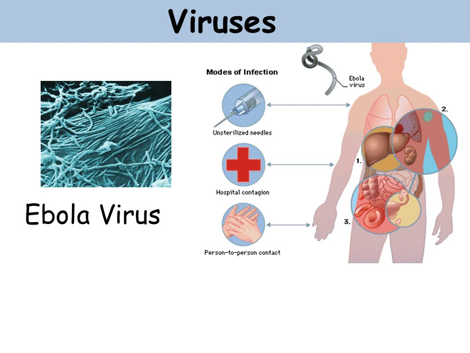 the characteristics of ebola a dangerous virus Ebolavirus: ebolavirus, genus of viruses in the family filoviridae, certain members of which are particularly fatal in humans and nonhuman primates in humans, ebolaviruses are responsible for ebola virus disease (evd), an illness characterized primarily by fever, rash, vomiting, diarrhea, and hemorrhaging.