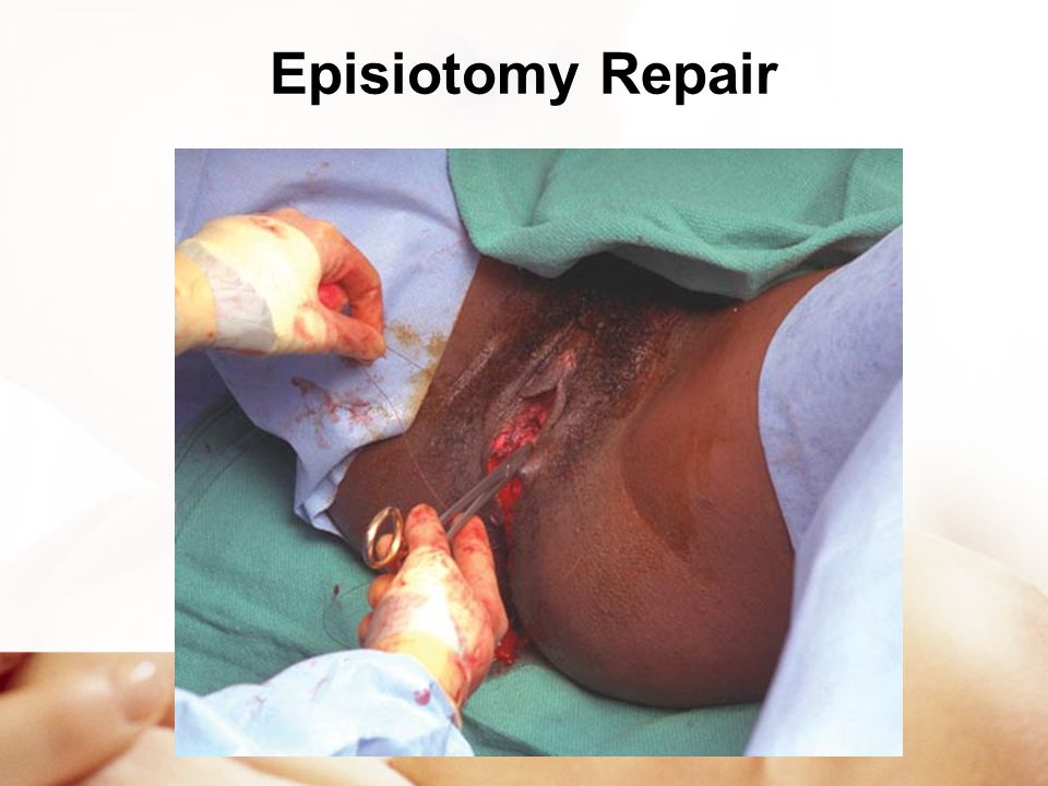 Episiotomy Repair