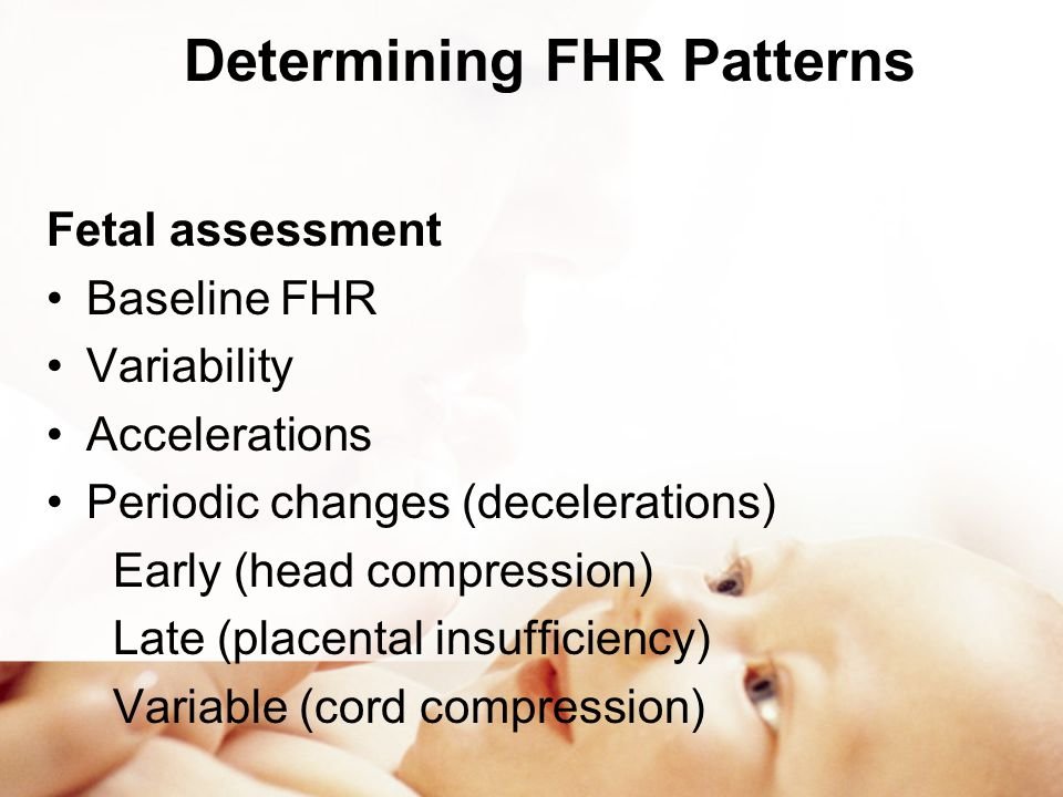 Determining FHR Patterns