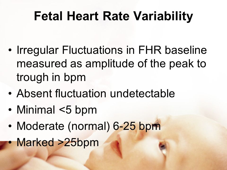 Fetal Heart Rate Variability
