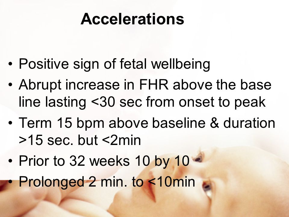 Accelerations Positive sign of fetal wellbeing