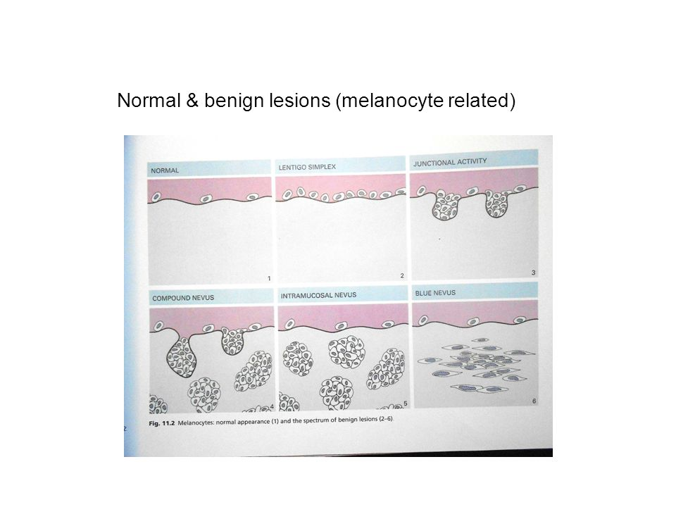 Normal & benign lesions (melanocyte related)