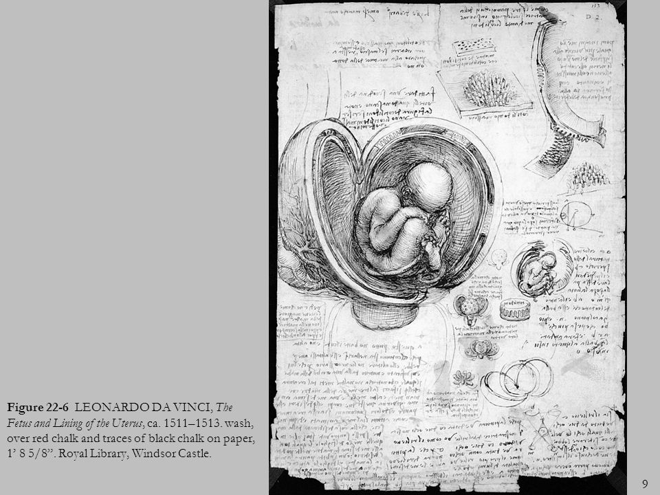 Figure 22-6 LEONARDO DA VINCI, The Fetus and Lining of the Uterus, ca