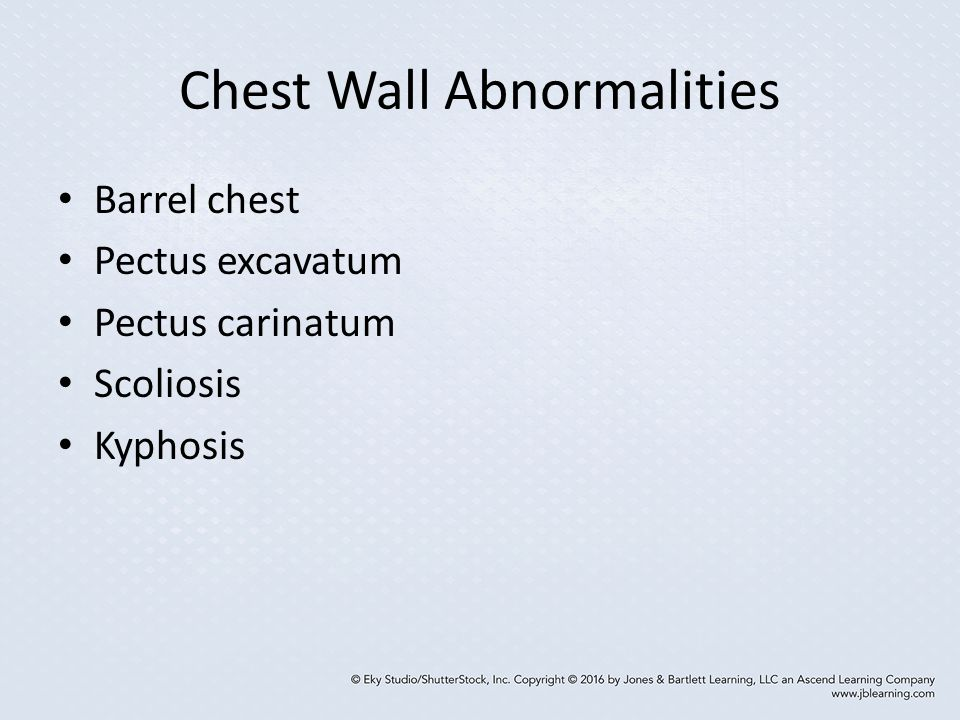 Chest Wall Abnormalities