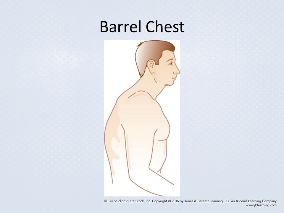 Barrel Chest