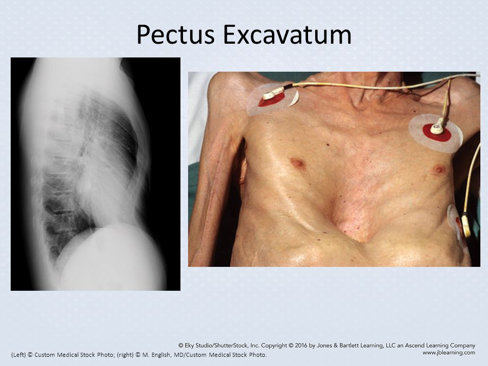 Pectus Excavatum (Left) © Custom Medical Stock Photo; (right) © M.