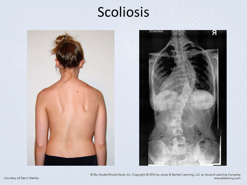 Scoliosis Courtesy of Darci Manley