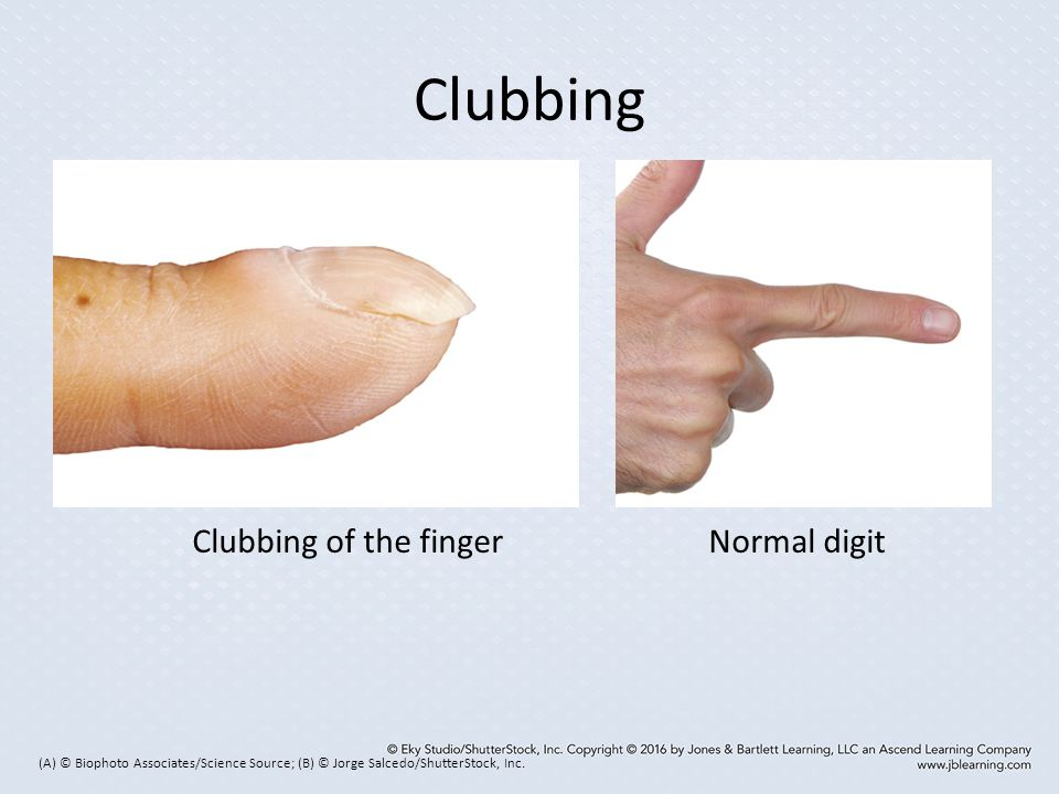 Clubbing Clubbing of the finger Normal digit