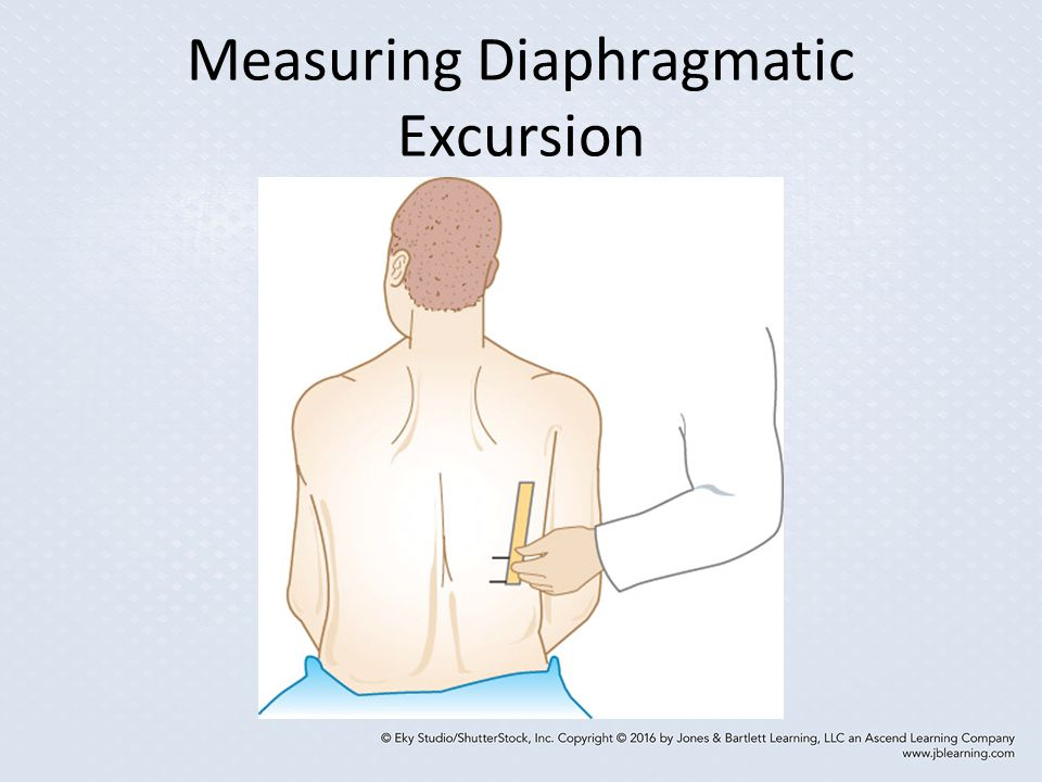 Measuring Diaphragmatic Excursion