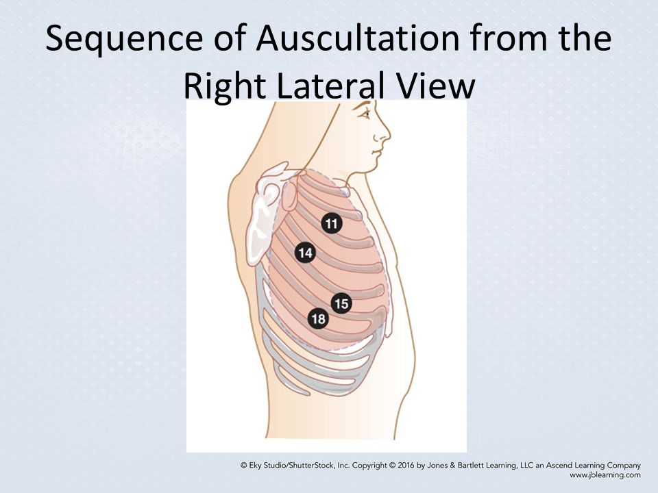 Sequence of Auscultation from the Right Lateral View