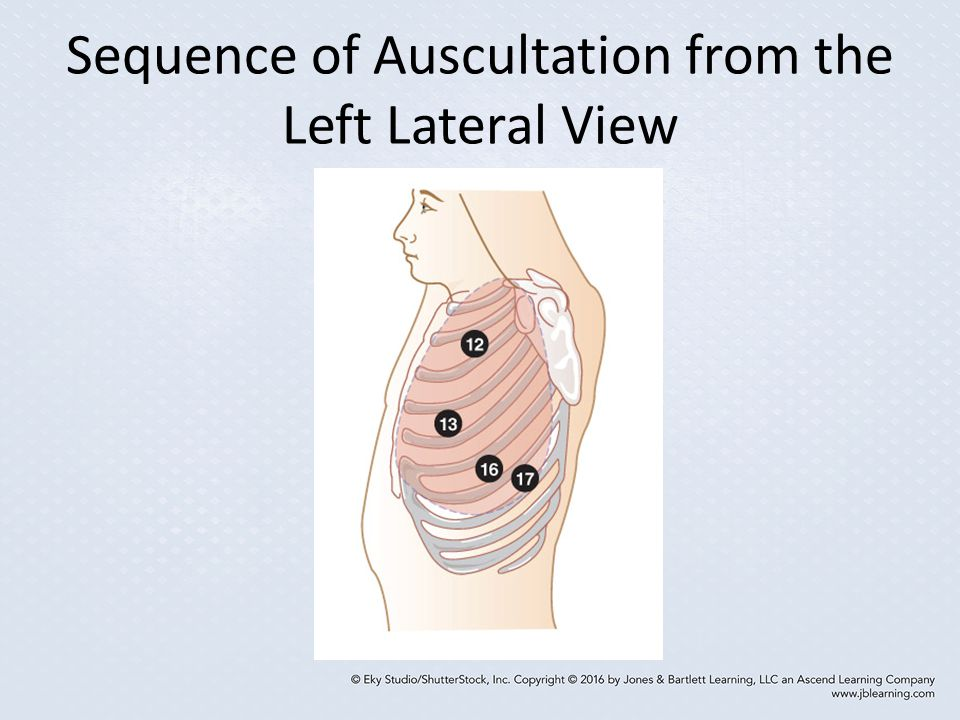 Sequence of Auscultation from the Left Lateral View