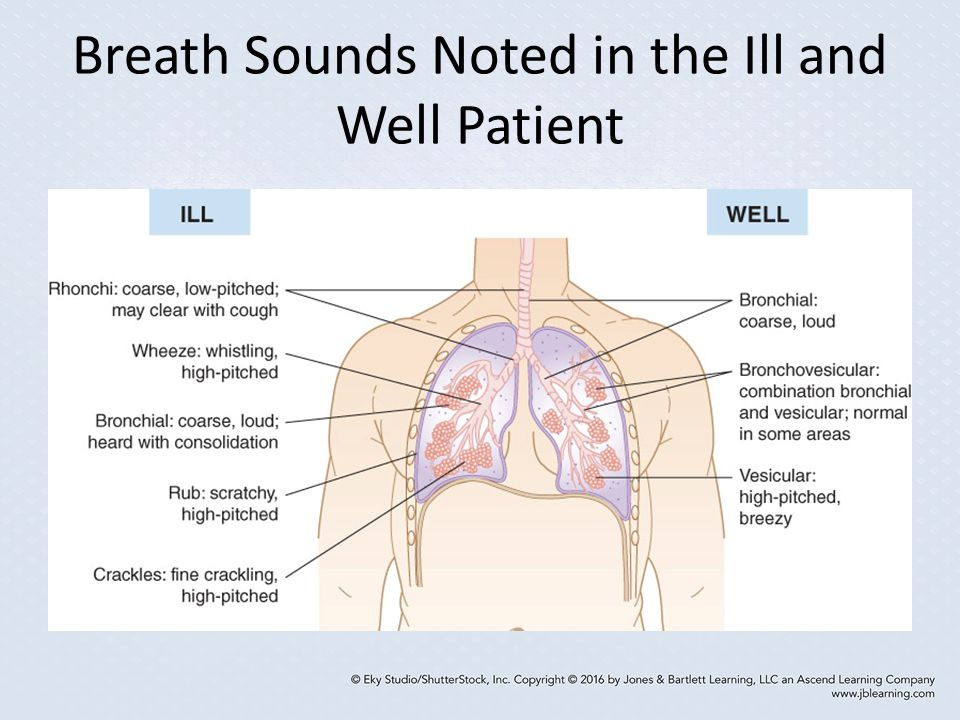 Breath Sounds Noted in the Ill and Well Patient