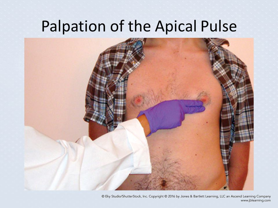 Palpation of the Apical Pulse