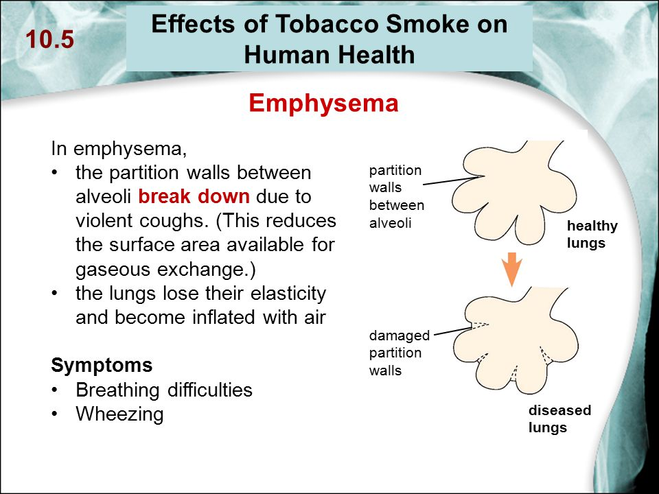 effect smoking breathing gas exchange pregnancy Reproductive health: how does smoking during pregnancy harm my health   babies who breathe in other people's cigarette smoke are more likely to have.