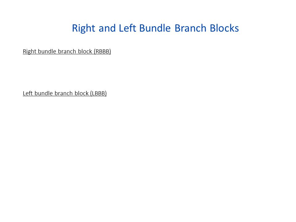 Right and Left Bundle Branch Blocks