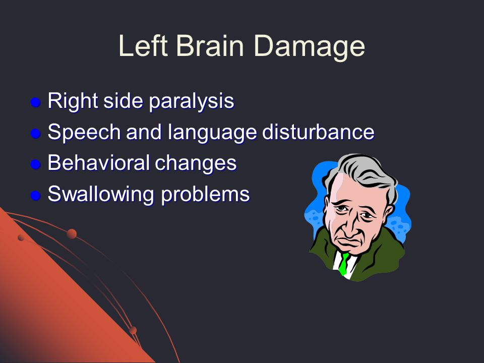 Stroke In The 21st Century Ppt Video Online Download