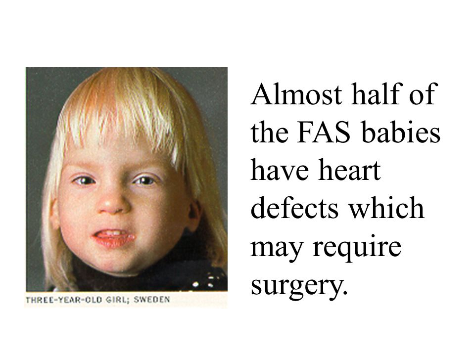 Read Me First Click On Baby For Youtube Link To Fetal