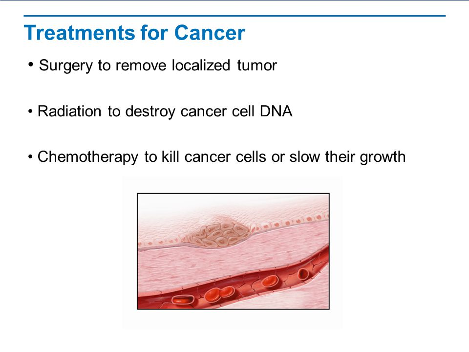 Treatments for Cancer Surgery to remove localized tumor