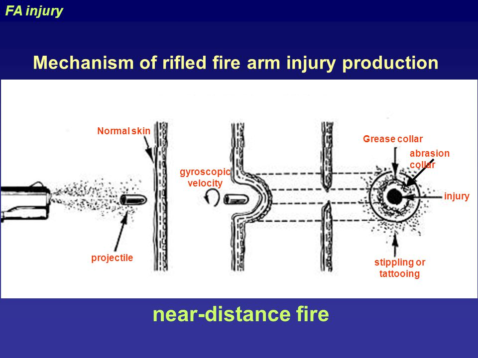 Mechanical trauma = Classification - ppt video online download