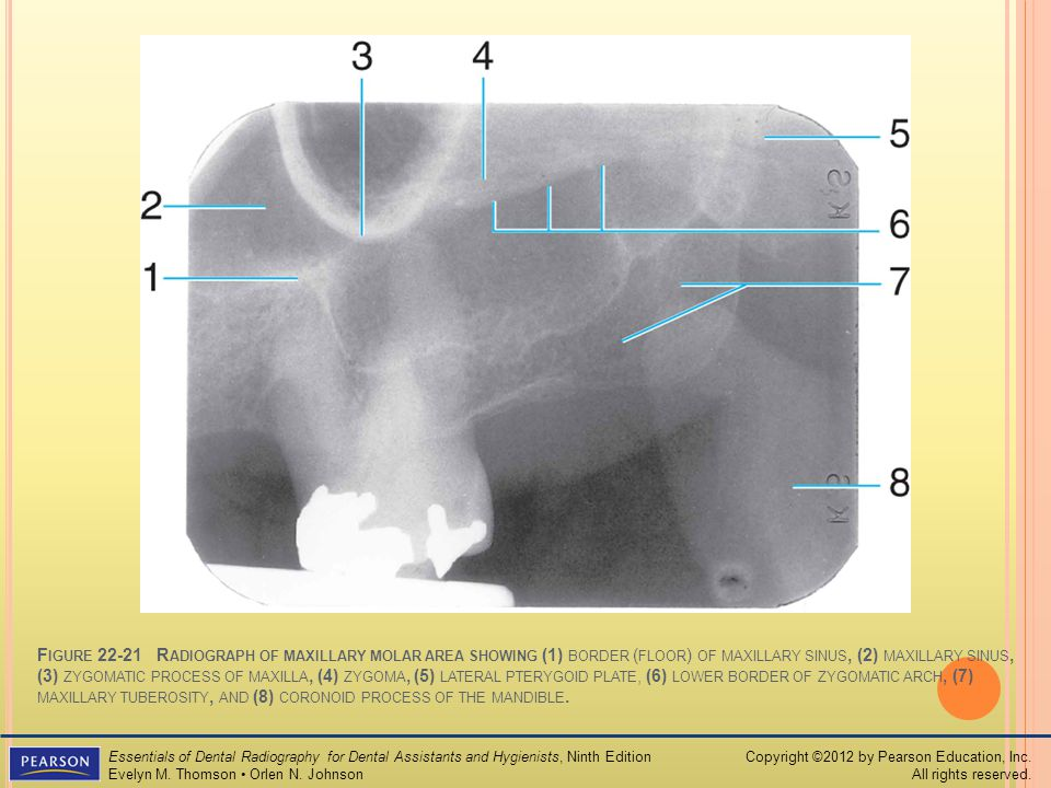 Lateral Pterygoid Plate Radiograph