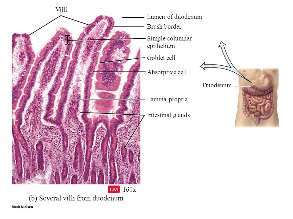 (b) Several villi from duodenum