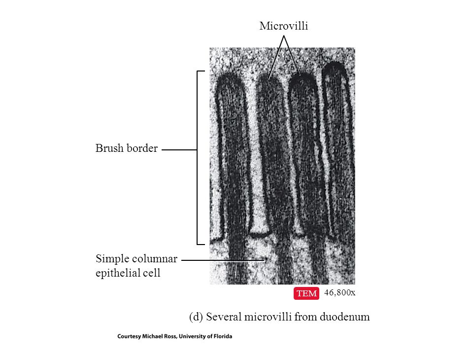 (d) Several microvilli from duodenum