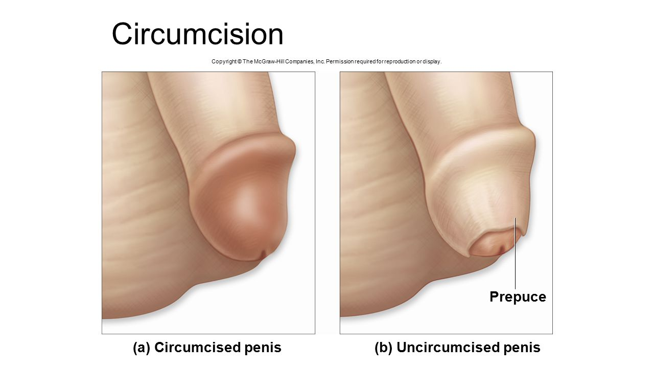 Photo of circumcised dick cumming youtube