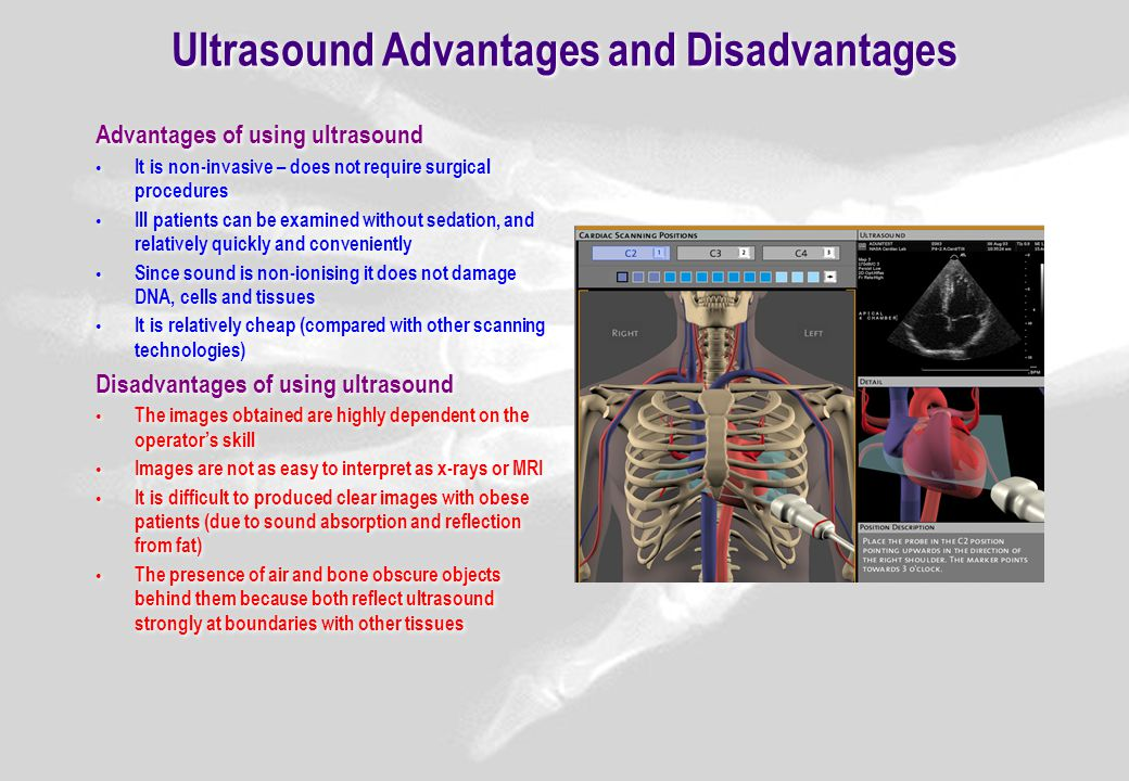 ultrasonography advantages and disadvantages Advantages and disadvantages of internet advantages and disadvantages of quotation the advantages and disadvantages of advantages and disadvantages of the british and.