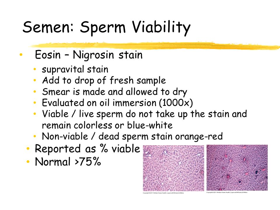 Opinion obvious. Sperm test vitality