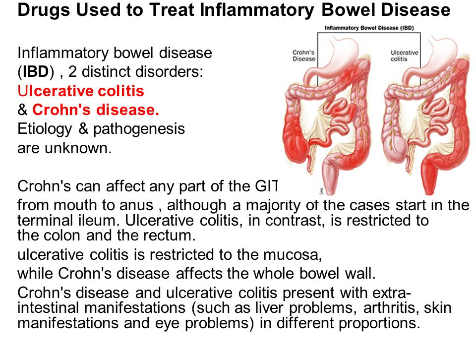 the history causes and symptoms of the inflammatory bowel disease Inflammatory bowel disease and symptoms crohn's disease in part by an exaggerated immune response to gut microbiota that causes defects in epithelial.