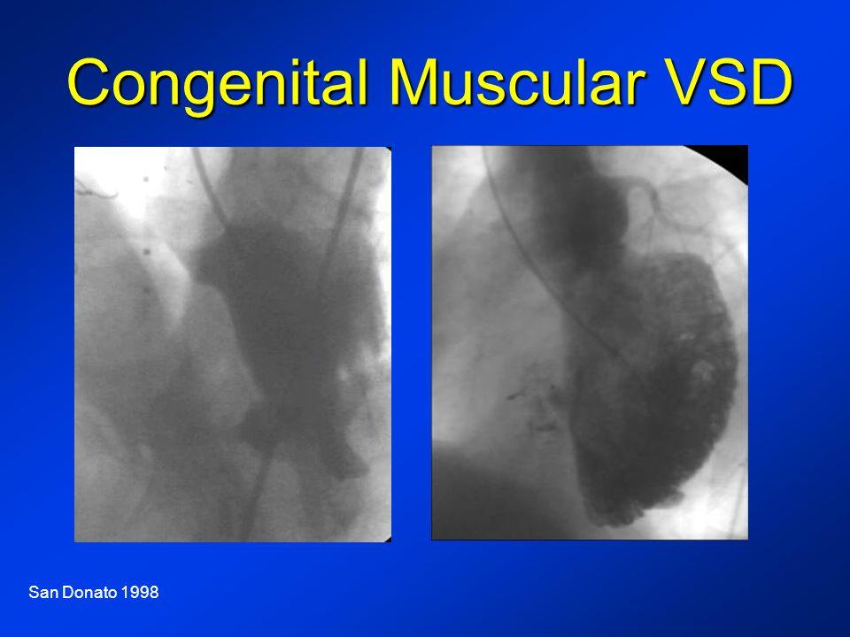Congenital Muscular VSD