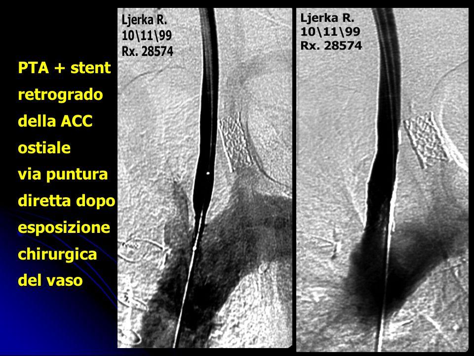 PTA + stent retrogrado della ACC ostiale via puntura diretta dopo esposizione chirurgica del vaso