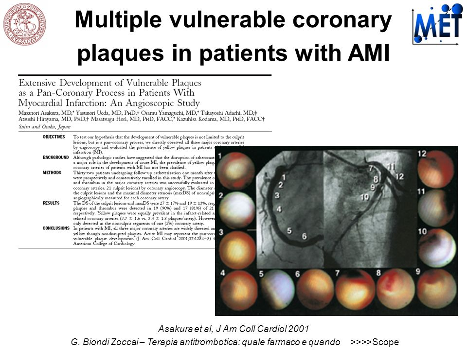 Multiple vulnerable coronary plaques in patients with AMI