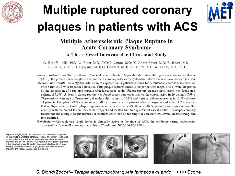 Multiple ruptured coronary plaques in patients with ACS